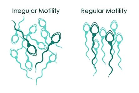 Poor sperm motility